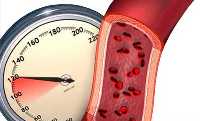 дисциркуляторная энцефалопатия 1 степени приыичны проявления