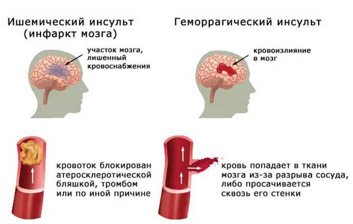 помогают ли капельницы для улучшения мозгового кровообращения