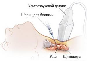 Тонкоигольная биопсия для щитовидки