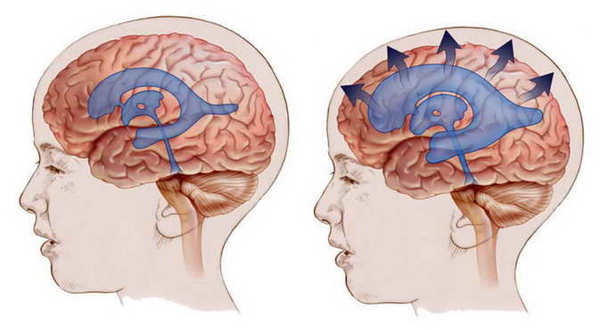 Генетические заболевания головного мозга