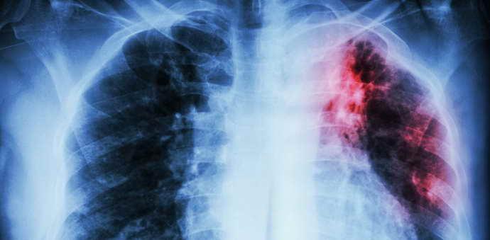 кому нельзя проводить китайское лечение иглами последствий ишемического инсульта