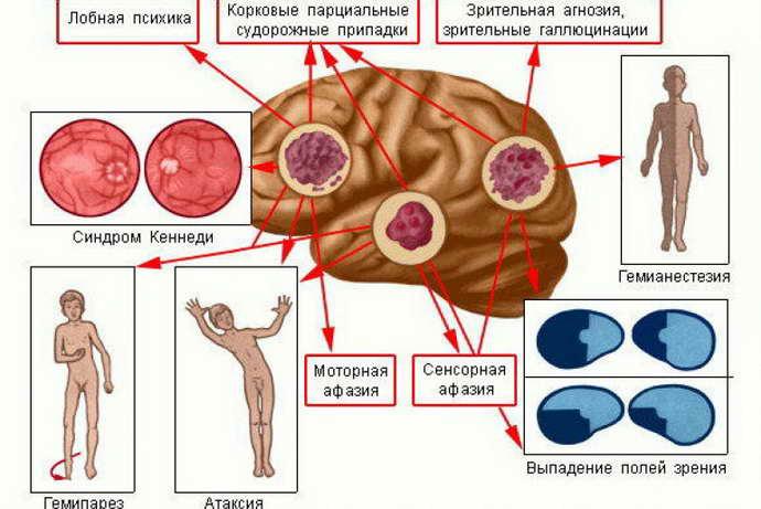 пилоидная астроцитома стадии развития