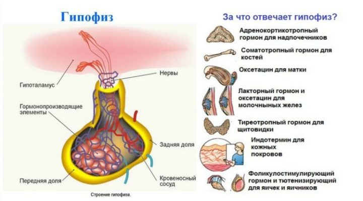 аденома гипофиза симптомы у женщин