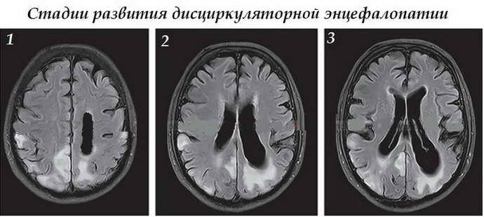 Причины дисциркуляторной энцефалопатии