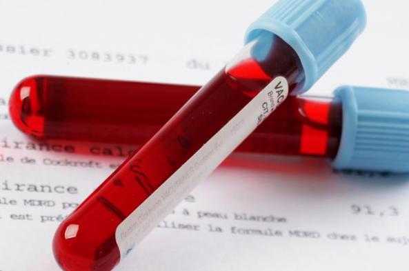 Цветовой показатель крови норма, причины отклонений и лечение
