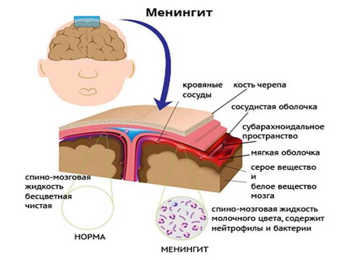 происхождение менингита