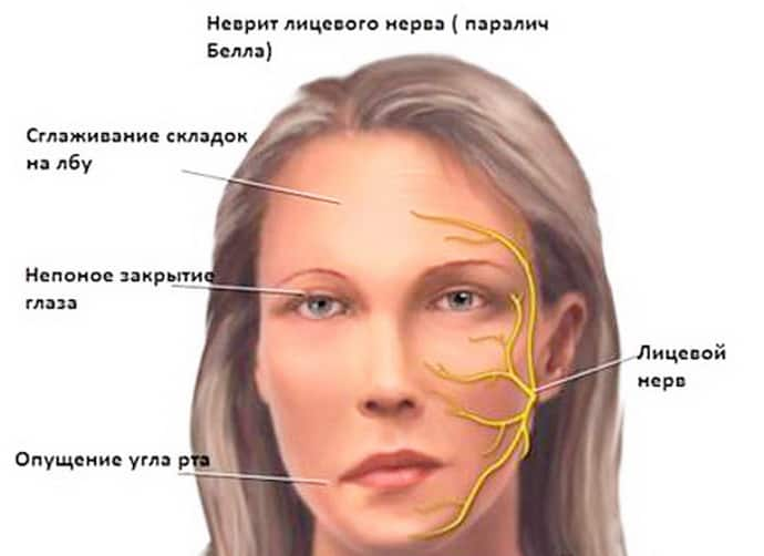 Симптомы алкогольной полинейропатии