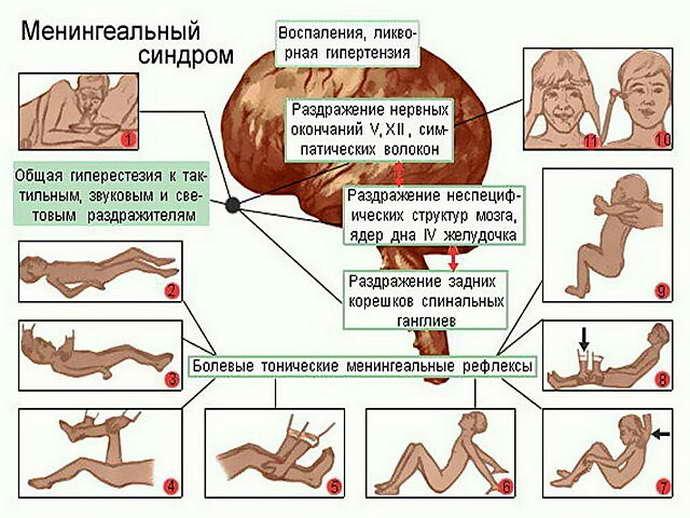 менингит у подростков лечение