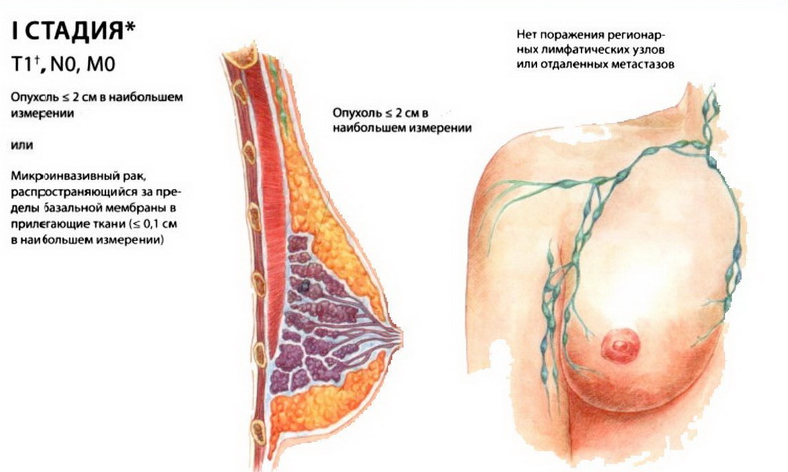 Лечение рака молочной железы