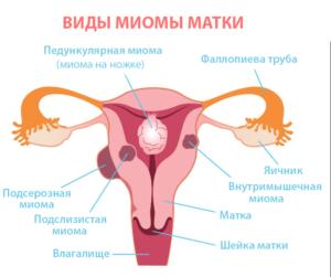 миома матки - схематично