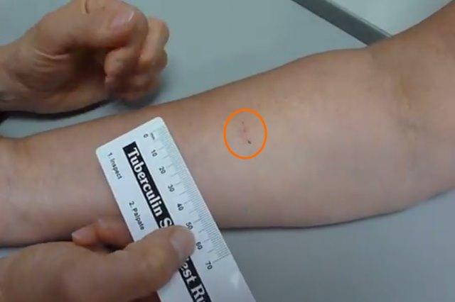 Размер туберкулиновой пробы проверяют линейкой