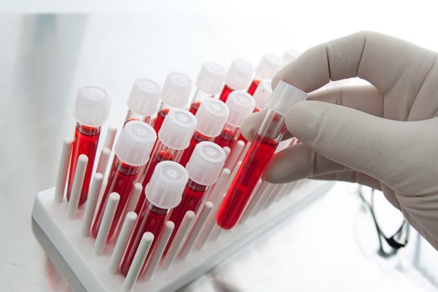 Малокровие или анемия. Что это за болезнь и как ее лечить?