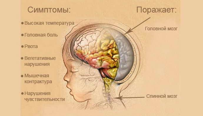 Изменение спинальной жидкости при гнойном варианте менингите