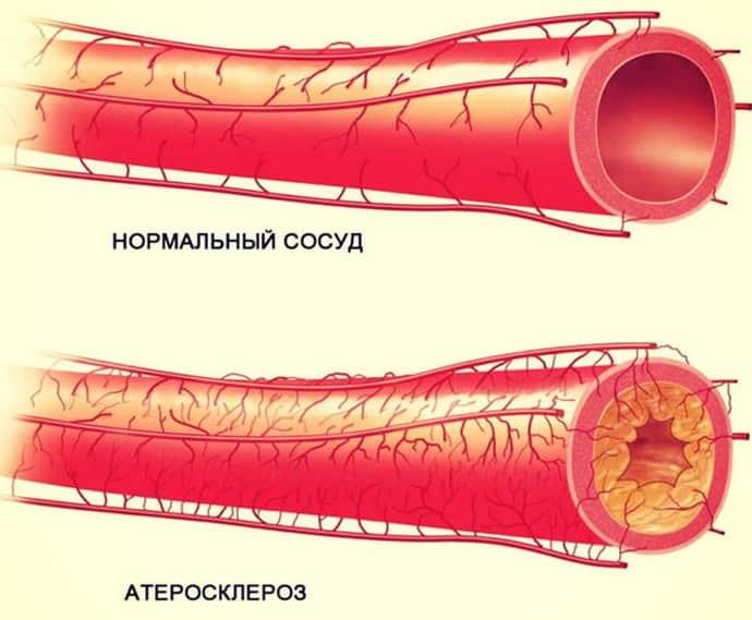 неврит лицевого нерва при атеросклерозе