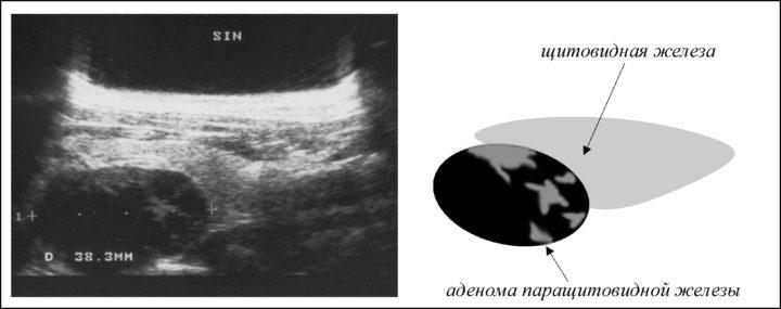 токсическая аденома щитовидной железы причины