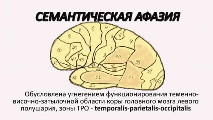 Симптомы афазии