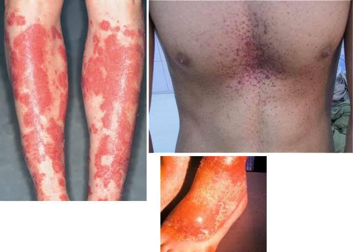 Пигментация при болезни Хартнупа