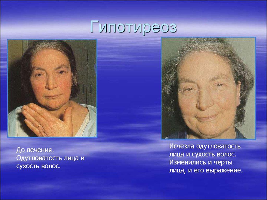 пациентка до и после лечения