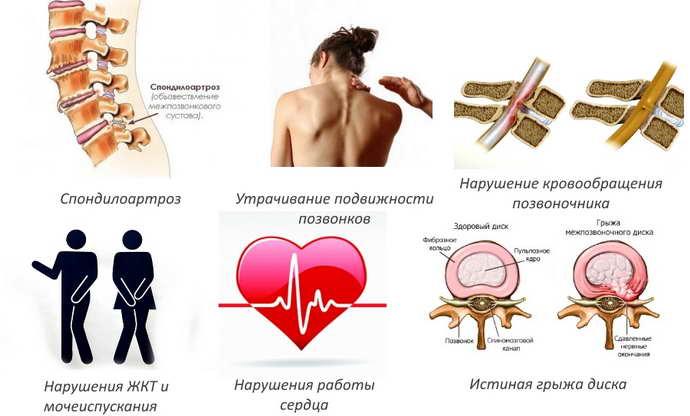 грыжа шморля симптомы