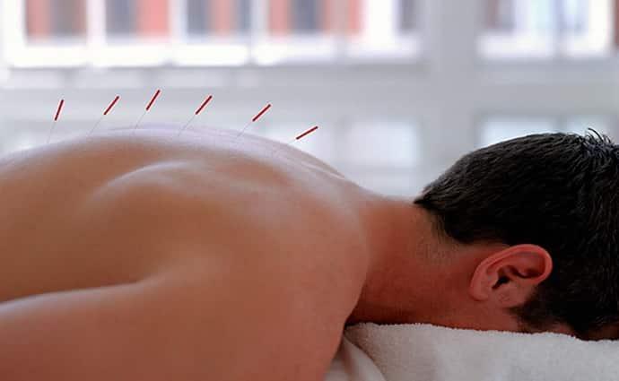 Поможет ли иглоукалывание при протрузии