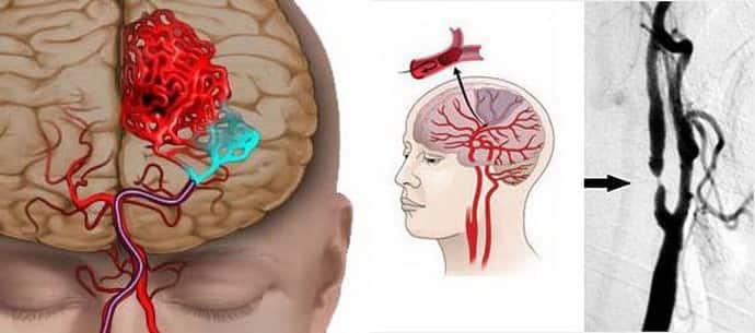 Факторы провоцирующие афазию
