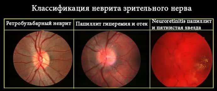 Виды глазного неврита