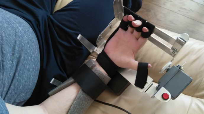 Аппарат «Бутон» после инсульта