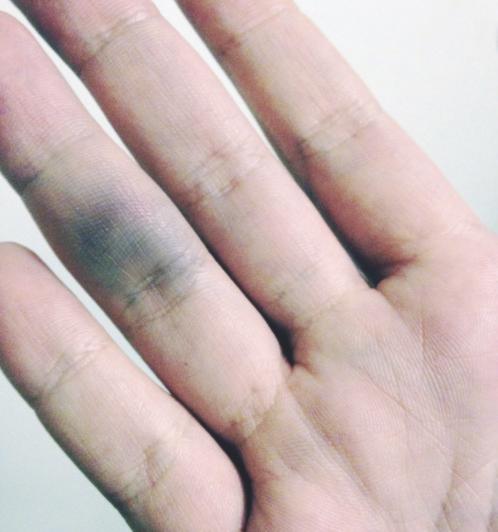 Почему лопаются сосуды на пальцах рук и появляются синяки, как лечить