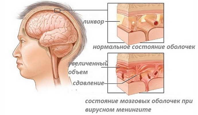 Кисты в голове