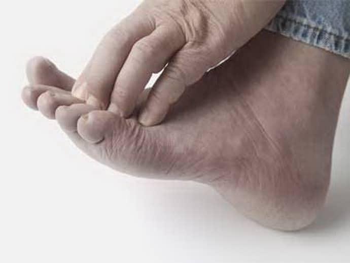 проявления диабетической полинейропатии