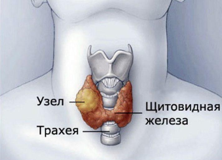 изоэхогенный узел щитовидной железы что это такое