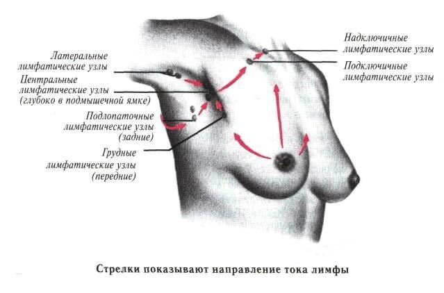 Лимфоузлы в груди