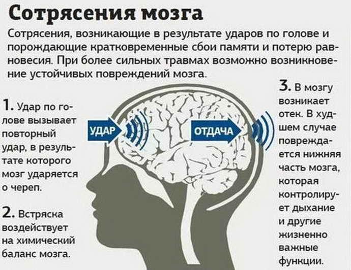 Что такое сотрясение головного мозга и его основные симптомы