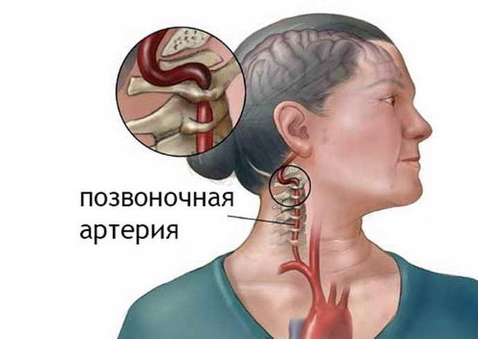 нарушение мозгового кровообращения при шейном остеохондрозе почему возникает