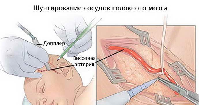 Особенности процедуры шунтирования головного мозга