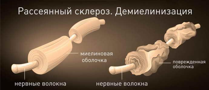 энцефаломиелит рассеянный хроническая форма