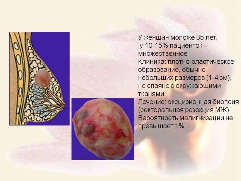 Фиброма молочной железы