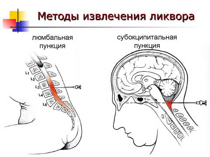 гнойный менингит диагностика