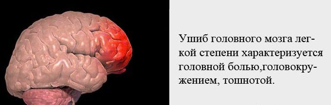 Признаки ушиба головного мозга