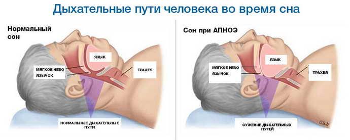 Синдром апноэ у детей
