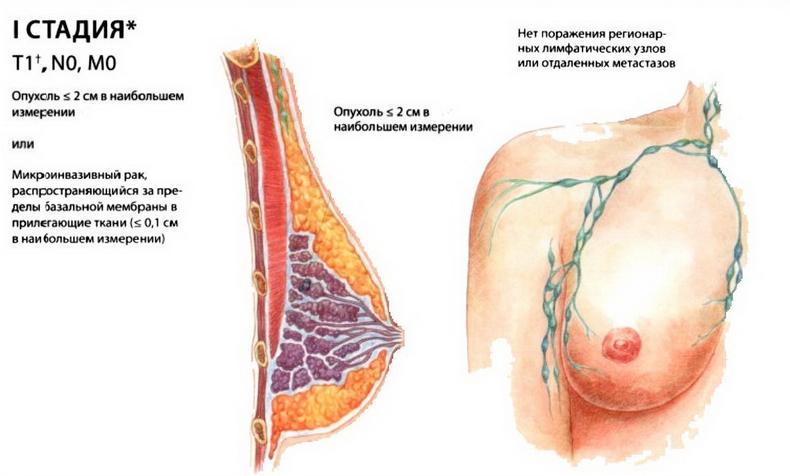 Первая стадия рака молочной железы