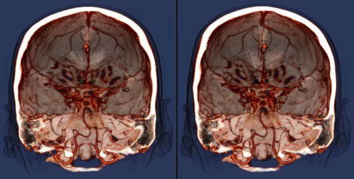 Лейкоареоз головного мозга: что это такое