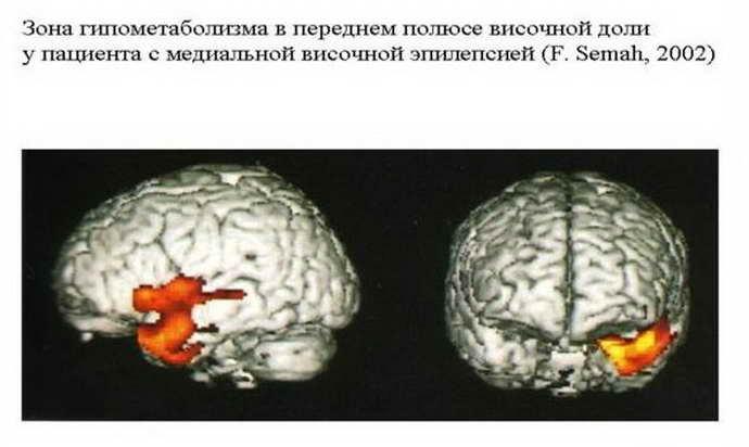 Симптоматическая эпилепсия у детей