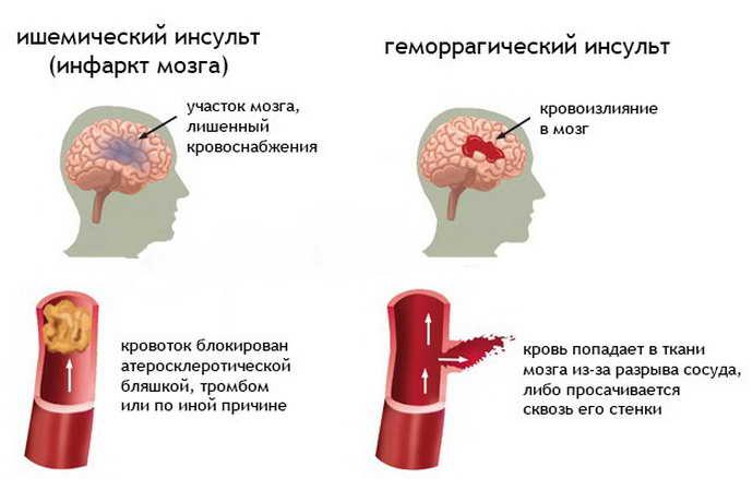 основные факторы риска, которые провоцируют недостаточность мозгового кровообращения