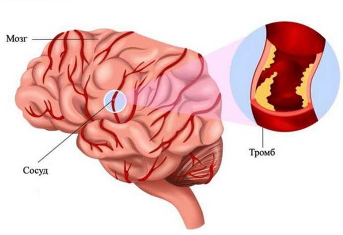 Причины появления тромба