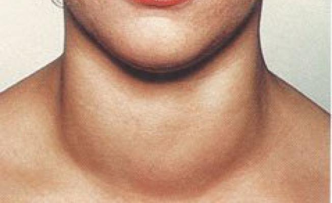 увеличенная щитовидная