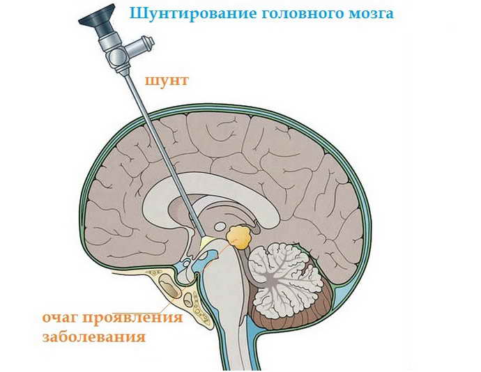 лечение кисты мозга