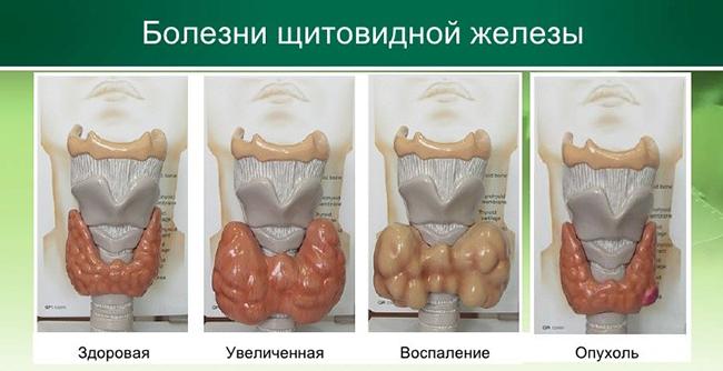 болезни щитовидной железы