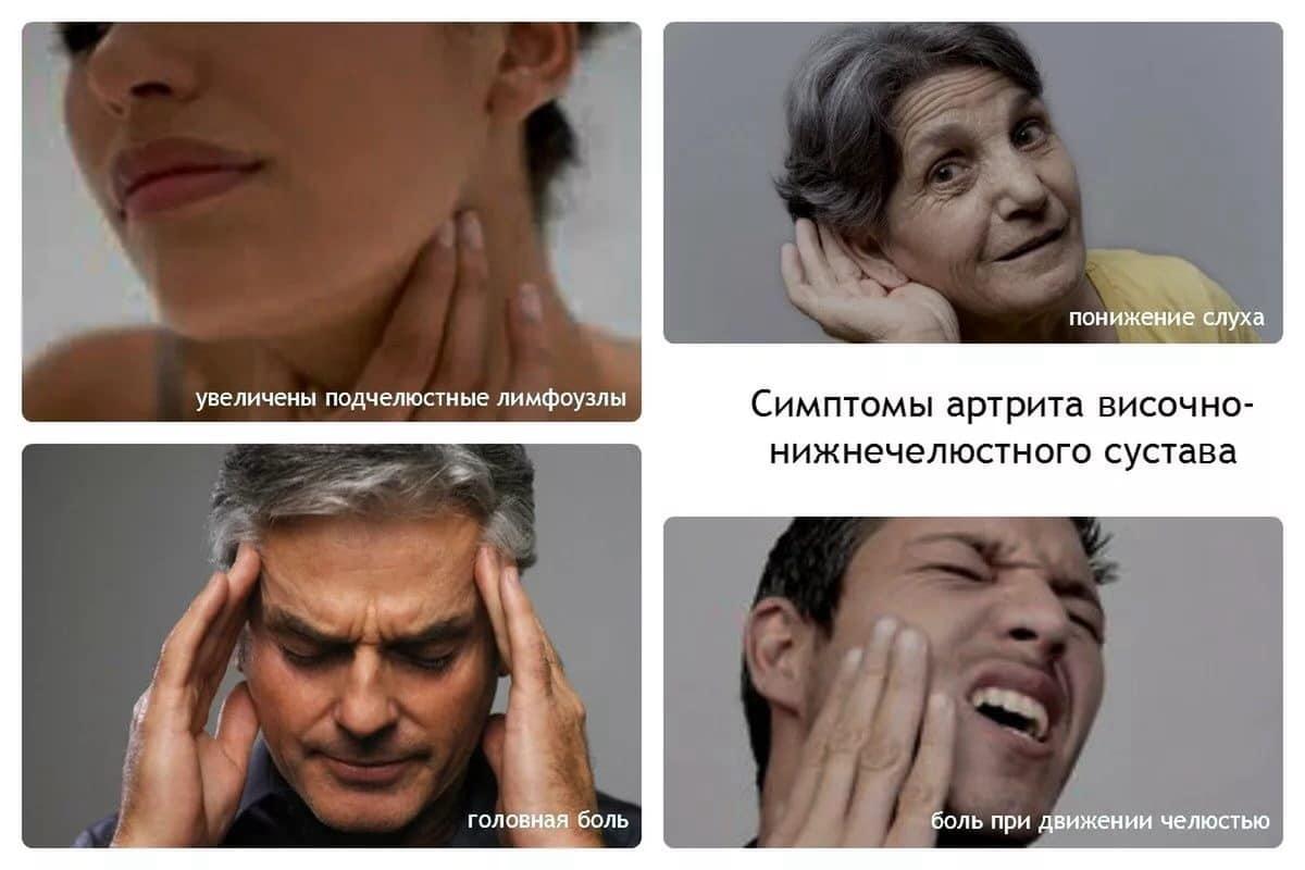 Симптомы нарушений височно-нижнечелюстного сустава