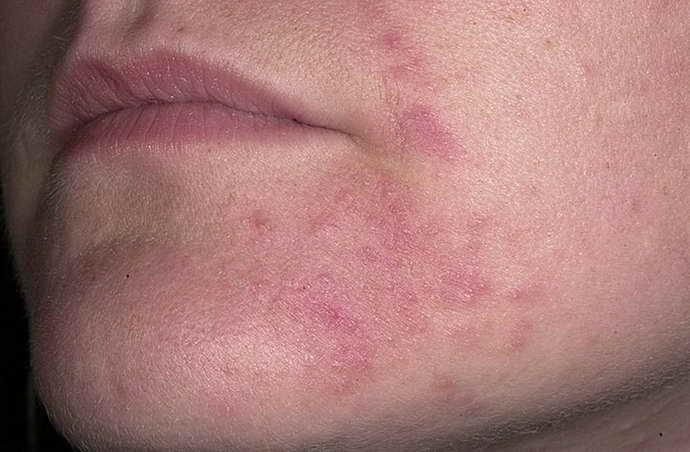 бактериальный менингит сыпь